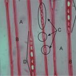 弦切面上之孔 Pit of tracheids on tangential section