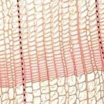 木質線(針葉樹材) ray (softwood)