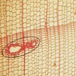 樹脂溝 resin canal