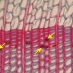 縱向薄壁細胞 Axiall parenchyma